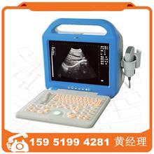 全数字超声诊断仪ATNL51353B  LCD笔记本便携B超图像清晰突阵探头